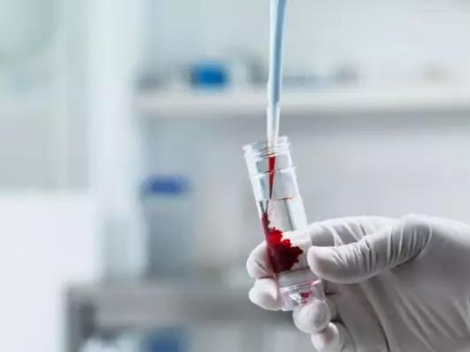 脐带血移植治疗罕见病