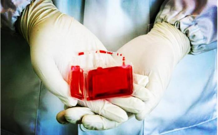 自存脐带血移植成功
