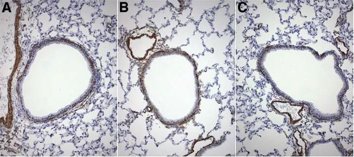 ▲ A. 常氧暴露的对照组;B. 高氧暴露;C. MNCs静脉内治疗的高氧暴露动物组。.jpg
