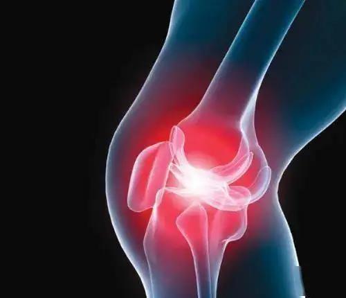 目前我国膝关节症状性骨关节炎发病率为8.1%,普遍认为病因主要与年龄、肥胖、炎症、损伤、以及遗传等因素相关。.jpg